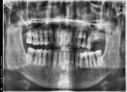 57세남자환자 / 상악좌측구치부 뼈이식 및 임플란트 식립