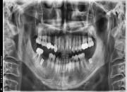 57세 남자환자 / 하악 좌측,우측 뼈이식및임플란트식립
