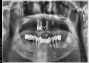 67세 남자환자 / 상악전체 & 하악구치부 발치후 뼈이식 및 임플란트 식립