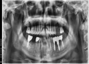 71세 남자환자 / 좌측상악, 우측하악 발치후 뼈이식및임플란트식립