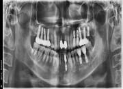 54세 남자환자 / 하악전치&우측구치 발치후 뼈이식 및 임플란트식립