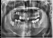 63세남자환자 / 우측상악구치부 뼈이식 및 임플란트식립