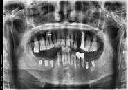 52세 여자환자 / 양쪽하악 발치후 뼈이식및임플란트식립