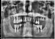 66세남자 상악 좌우 구치부 하악 좌측구치부 뼈이식및 임플린트식립