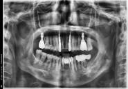67세 여자 상악 전치부 & 좌ㆍ우 구치부 뼈이식및임플란트식립